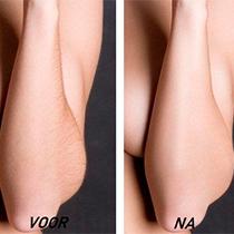 Uw armhaar laten verwijderen? LoveNails heeft een 100% vellige en zachte behandelingen om armen te ontharen.
