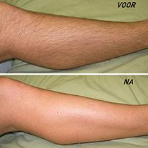 Uw benen laten ontharen? LoveNails is een specialist in het verwijderen van haartjes op de benen.