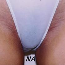 Uw bikinilijn of schaamstreek laten ontharen? LoveNails is een specialist in ontharingen van gezicht & lichaam.