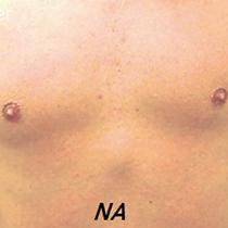 Uw borst ontharen? LoveNails heeft een 100% vellige en zachte behandeling om ongewenst borsthaar te verwijderen.