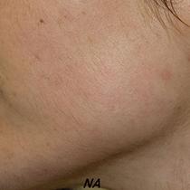 Uw gezichtshaar professioneel laten epileren? LoveNails biedt een 100% veilige en zachte gezichtsontharing.