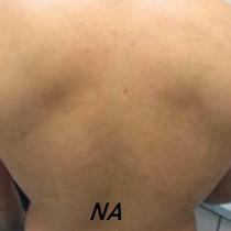 Uw ongewenst en overtollig rug haar laten verwijderen? LoveNails heeft een 100% vellige en zachte behandeling om uw rug te ontharen.