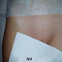 Uw intiem laten ontharen? LoveNails heeft een 100% vellige en zachte behandeling om uw schaamstreek of bikinilijn te ontharen zonder irritatie.